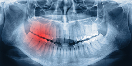 x-ray infected tooth