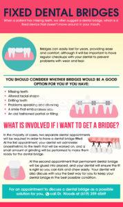 Fixed Dental Bridges