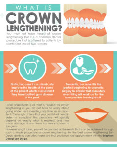 crown lengthening infographic