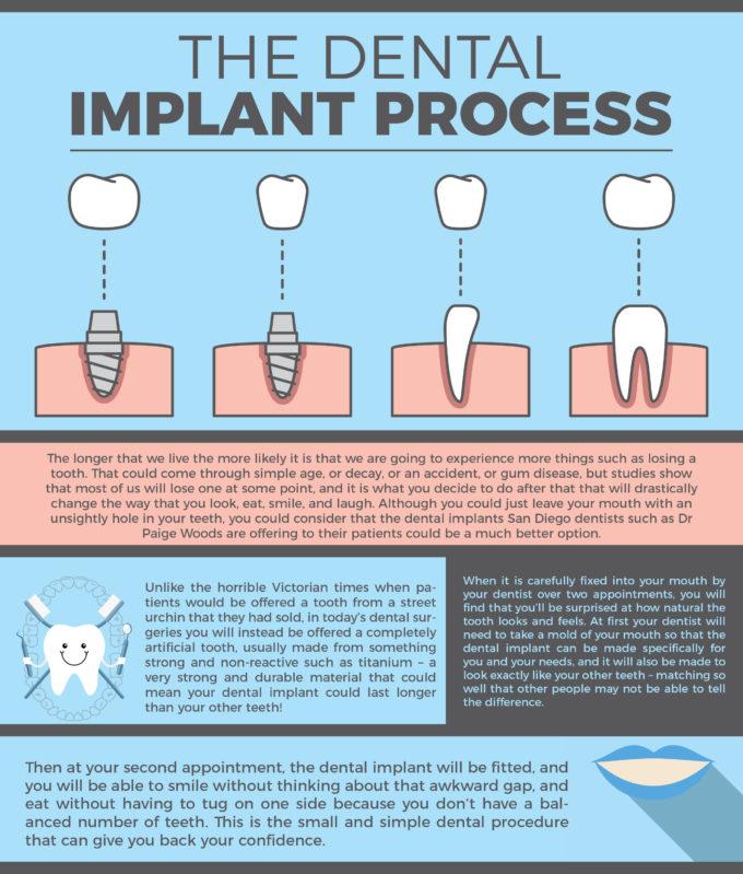 Dental Implant Infographic