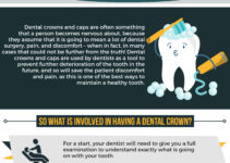 dental crown infographic
