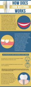zoom whitening infographic