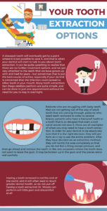 tooth extraction infographic