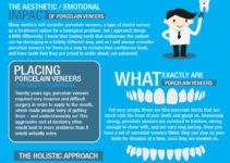 Dental Veneers Infographic