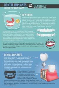 Dental Implants vs Dentures Infographic