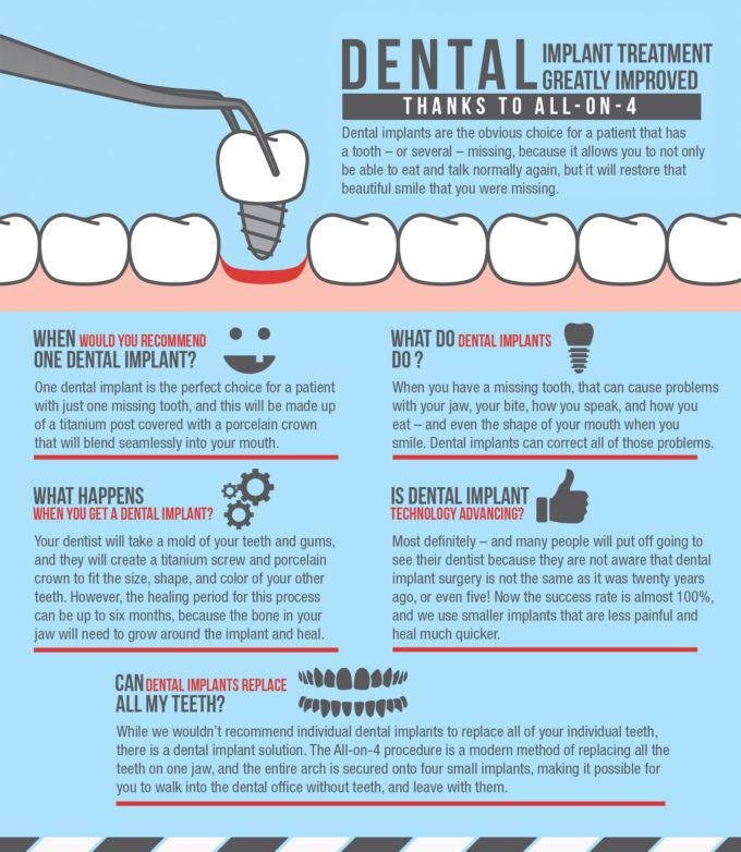 Dental Implant Treatment Infographic