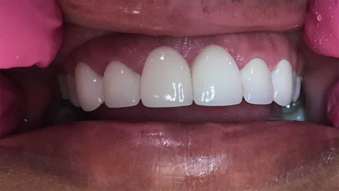 porcelain bridge on patient