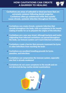 cavitations infographic