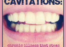 cavititations