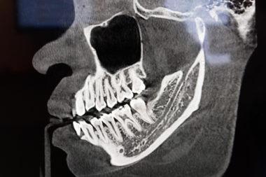 cavitation treatment x-ray