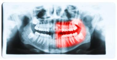 cavitation jaw bone