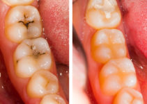 biomimetic molars treatment