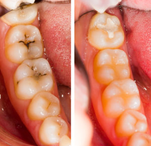 biomimetic molars treatment