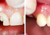 biomimetic dental treatment