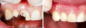 biomimetic dental treatment