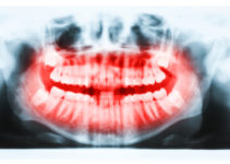 Panoramic x-ray image of cavitation