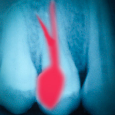 inflamed root canal