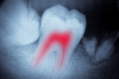 root canal xray