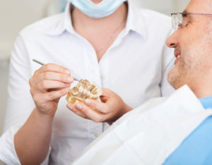 holistic dental implant explained