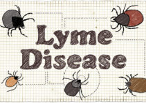 How Root Canals and Cavitations Can Encourage Lyme Disease
