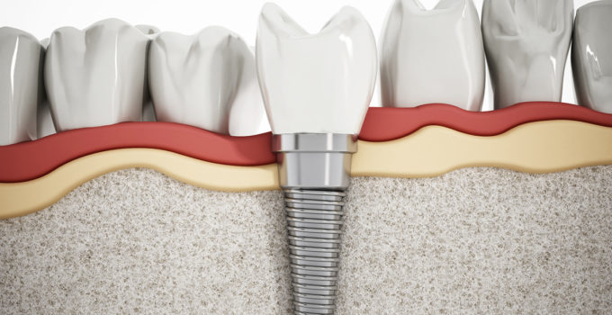 Stop The Endless Cycle Of Temporary Dental Fixes And Failures With Hybridge
