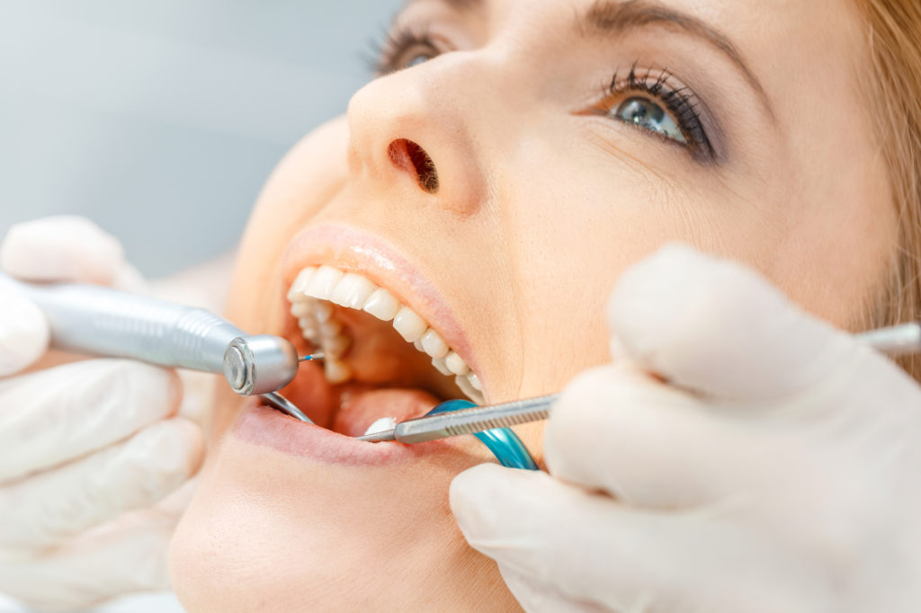Your Hybridge Questions: FAQs About Full Mouth Restorations